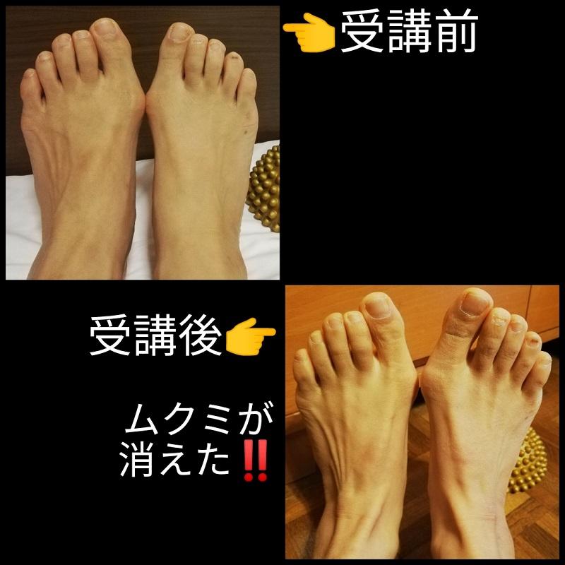 足を改善するセミナー受講前後の足写真
